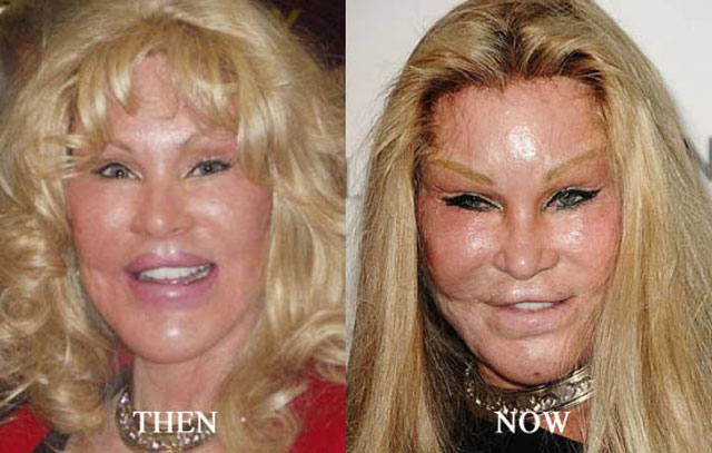 Sixth image of Jocelyn Wildenstein Plastic Surgery Gone Wrong with Top 5 Most Expensive Celebrity Plastic Surgeries | Explore ...